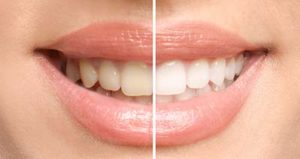A woman smiles, showing the before and after images of teeth whitening services in Korhville Texas