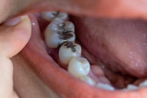 patient teeth with dental fillings and sealants kohrville tx