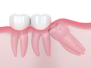 Diagram details what an impacted tooth looks like