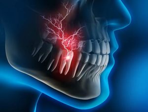 an xray shows tooth pain during a dental emergency
