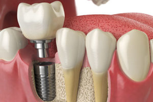 an example of putting in dental implants